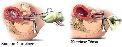 kuret